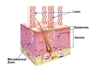 Lasers for Keloid Scar Reduction