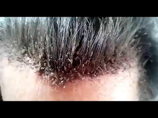 A Big Invasion of Lice