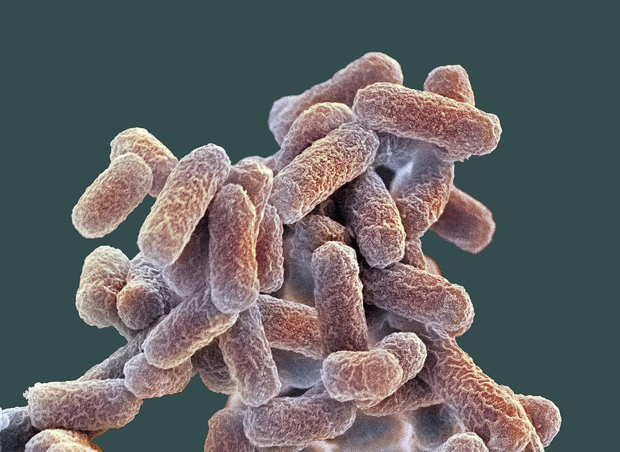 E coli longterm evolution experiment  Wikipedia
