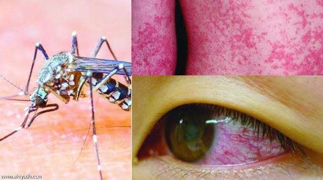 16 حقيقة مهمة جدا عن فيروس زيكا القاتل  وكيفية الوقاية منه