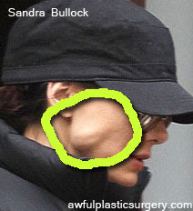 Sandra Bullock Lump in the Face