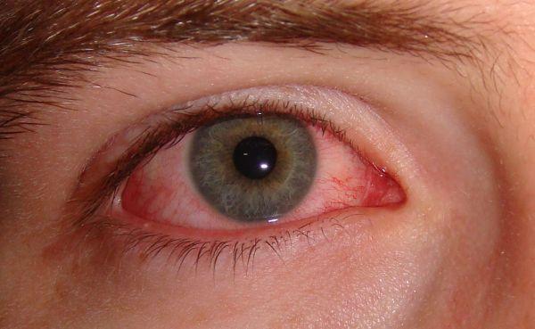 Pengobatan dengan air pada penyakit mata