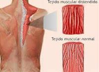 tratamientos+del+desgarro+muscular Tratamientos del desgarro muscular