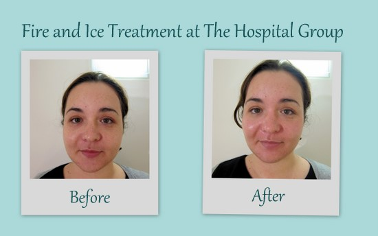 Treatment Tales: Fire and Ice Treatment at The Hospital Group