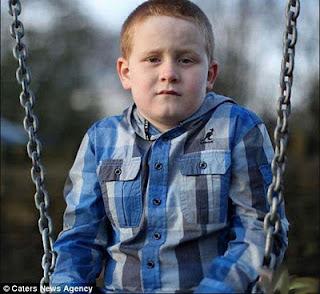 طفل ممنوع من الضحك لكي لا يفقد حياته