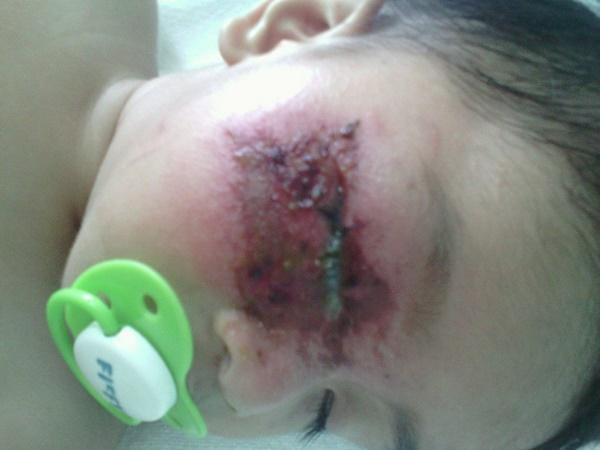 (GAMBAR) Wanita Kongsi Kisah Anak Parah Doktor Tersilap Beri Ubat Sakit Mata, MENGERIKAN!!