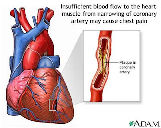 Angina Pectoris Nursing Diagnosis