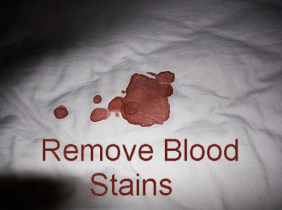 How to rid of old blood stains on bed mattress