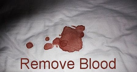 How To Get Blood Out Of Bed Sheets 28 Images