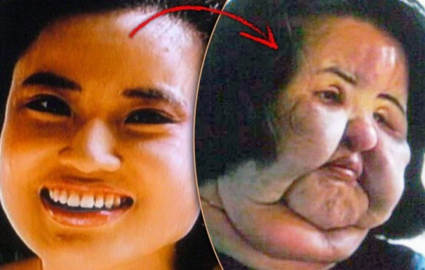 Woman who injected COOKING OIL into her own face