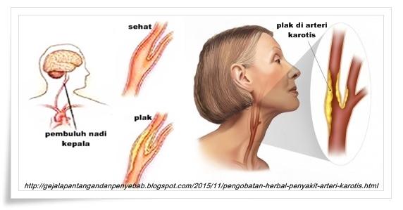 Pengobatan Herbal Penyakit Arteri Karotis
