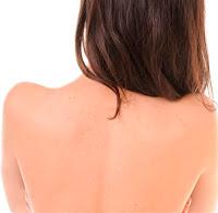 Formel gegen Pickeln am Rücken und an der Brust
