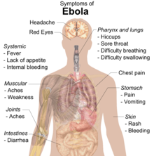 Symptoms of Ebola Hemorrhagic Disease (Ebola Virus Fever)