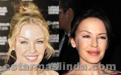 kylie minogue antes y despues