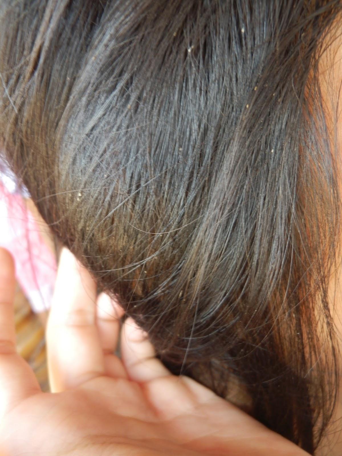 What Do Fleas Look Like In Human Hair - Discount Hair ...