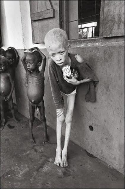 عجائب الدنيا وهل تعلم - وفي هذا المشهد أكثر من 900 طفل يعيشون في معسكر يقتربون من الموت بسبب الجوع.