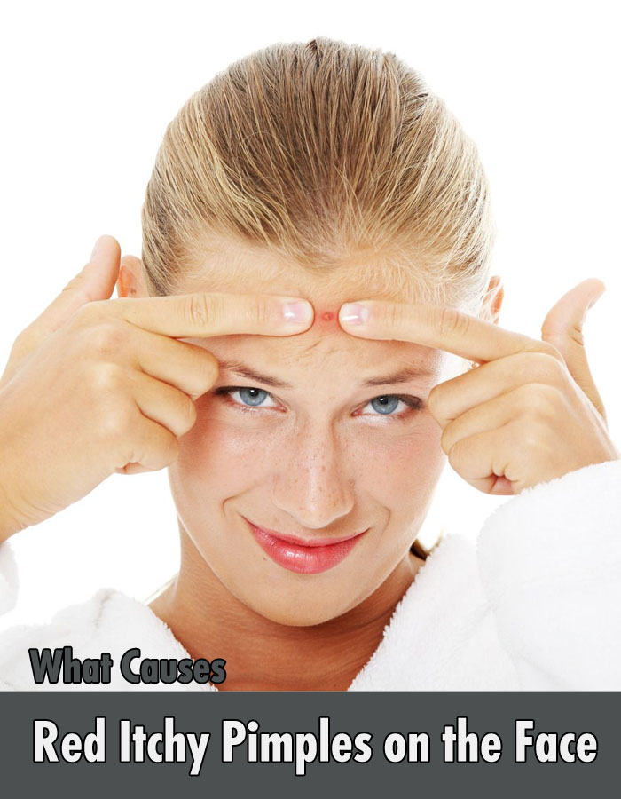 What Causes Red Itchy Pimples on the Face