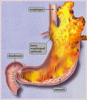 Gastroesophageal reflux disease (GERD)   What is gastroesophageal reflux disease (GERD)? Reflux means that stomach acid and juices flow from the stomach back up into the tube that leads from the throat to the stomach (oesophagus). This causes heartburn when you have heartburn at least 2 times a week; it is called gastroesophageal reflux disease, or GERD.  Eating too much or bending forward after eating sometimes causes heartburn and a sour taste in the mouth. But having heartburn from time to time doesn't mean you have GERD. With GERD, the reflux—and heartburn—last longer and come more often. If this happens to you, it is important to treat it, because GERD can cause ulcers and damage to the oesophagus.   Causes for GERD Normally when you swallow your food, it travels down the food pipe (oesophagus) to a valve that opens to let the food pass into the stomach and then closes. With GERD, the valve doesn't close tightly enough. Stomach acid and juices flow from the stomach and back up (reflux) into the oesophagus.    Symptoms for GERD The main symptom of GERD is heartburn. It may feel like a burning, warmth, or pain just behind the breastbone. It is also common to have symptoms at night when you are trying to sleep. If you have pain behind your breastbone, it is important to make sure it is not caused by a problem with your heart. The burning sensation caused by GERD usually occurs after you eat. Pain from the heart usually feels like pressure, heaviness, weight, tightness, squeezing, discomfort, or a dull ache. It occurs most often after you are active.   GERD diagnosis  First, your doctor will do a physical exam and ask you questions about your health. You may or may not need further tests. Your doctor may just treat your symptoms by prescribing medicines that reduce or block stomach acid. These include H2 blockers (for example, Pepcid) or proton pump inhibitors (for example, Prilosec). If your heartburn goes away after you take the medicine, your doctor will likely 