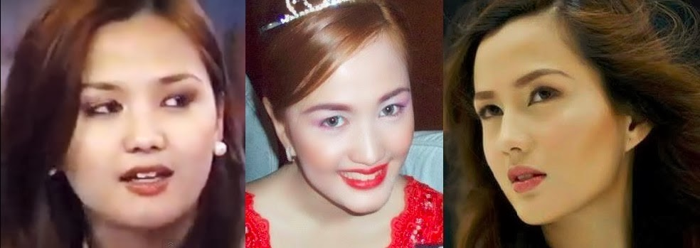 Who is Denise Millet Cornejo; Before and After Photos