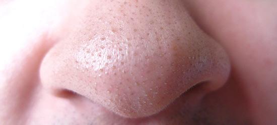 http://3.bp.blogspot.com/-BW9fku4Qpqg/Ub28nvMXX_I/AAAAAAAAAiQ/T05uYump5ys/s640/blackheads-nose.jpg
