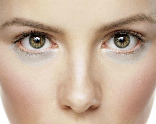 Penyebab Dan Cara Alami Menghilangkan Kantung Mata