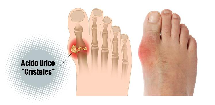 medicamentos para el dolor dela gota lista alimentos acido urico remedios caseros para el acido urico en los pies