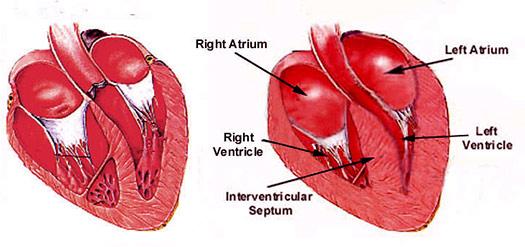 verdikking van de hartspier