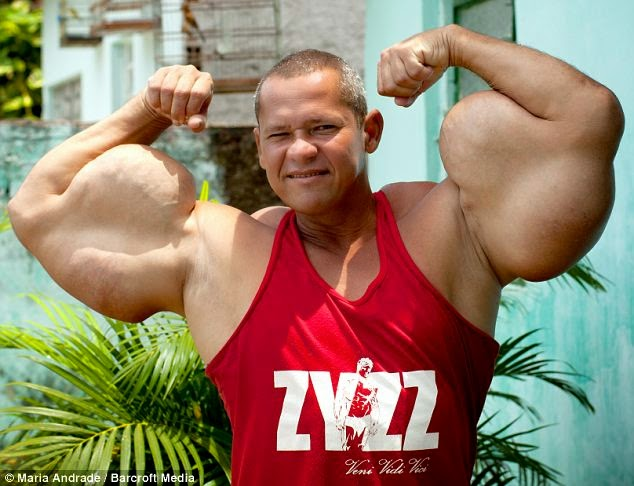 Real Life Popeye Injects Himself With Mineral Oil And Alcohol