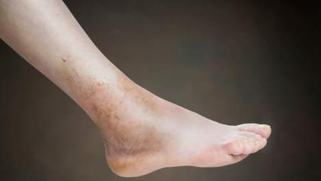 Rimedi di gente di trattamento di varicosity e thrombophlebitis