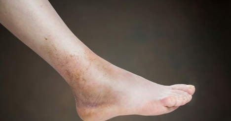 causes and treatment of deep vein thrombosis or dvt | health and, Human Body