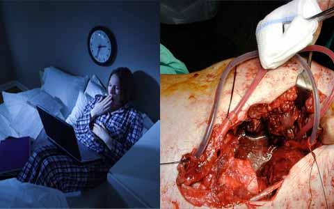 Tidur Terlalu Malam Dan Bangun Terlalu Siang Penyebab Utama Kanker Hati