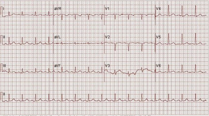 ekg lab report Learn the difference between ecg and ekg,  ecg vs ekg: what's the difference  this process was transmitted to his lab from a hospital.
