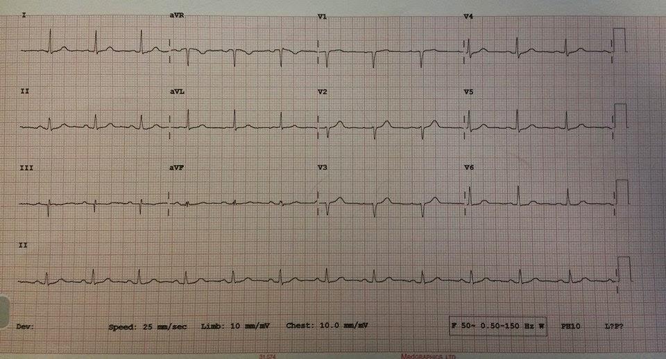 12 LEAD ECG EXAMPLE