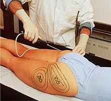 tratamientos,para,combatir,celulitis,liposuccion
