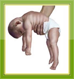 علامات واسباب رخاوة الأطفال وعلاجها