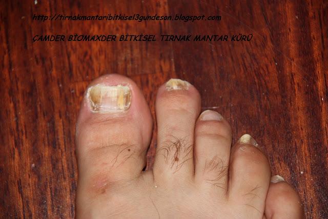 tırnak mantarı tedavisi, tırnak mantarı tedavi