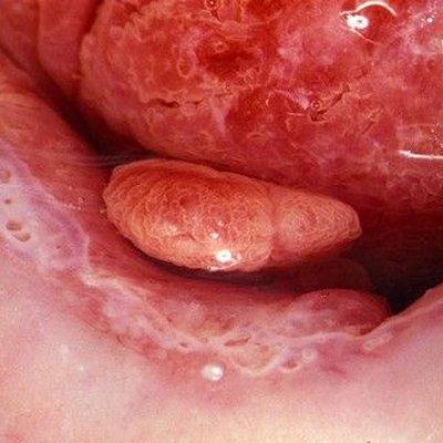 Cervical Polyps That Bleed Cervical Polyps
