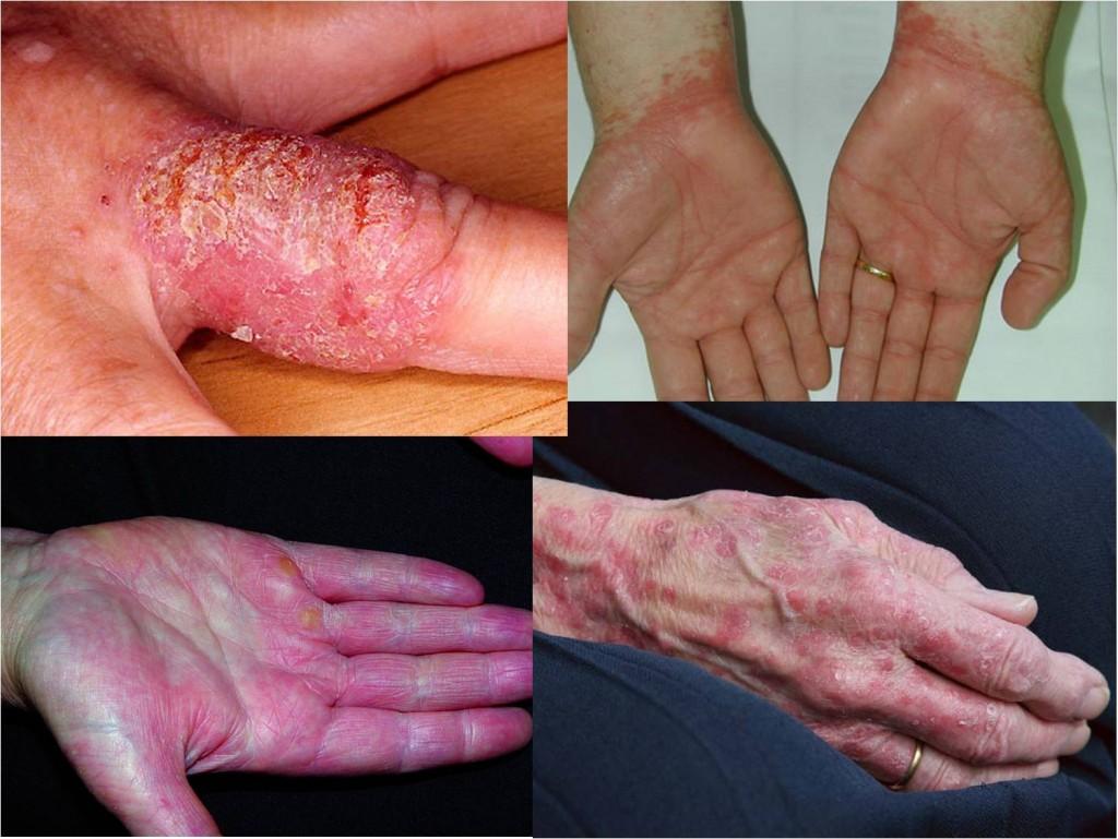 La psoriasis pustular el tratamiento