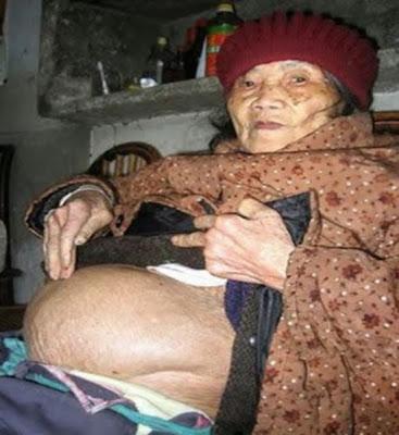 Mulher de 92 anos deu á luz a um bebê de pedra