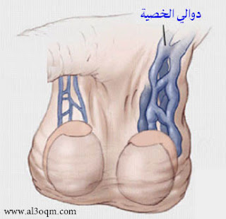 تأخر الإنجاب لدى الرجال وشدة الآلام من أهم أعراض دوالى الخصيتين الخصية - Varicocele Cure