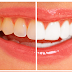 A Complete Tutorial on Whitening Yellow Teeth in Photoshop