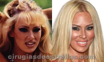 dientes de porcelana antes y despues