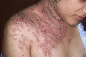 Herpes Pada Tubuh