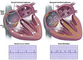 Informatii medicale despre fibrilatia atriala paroxistica