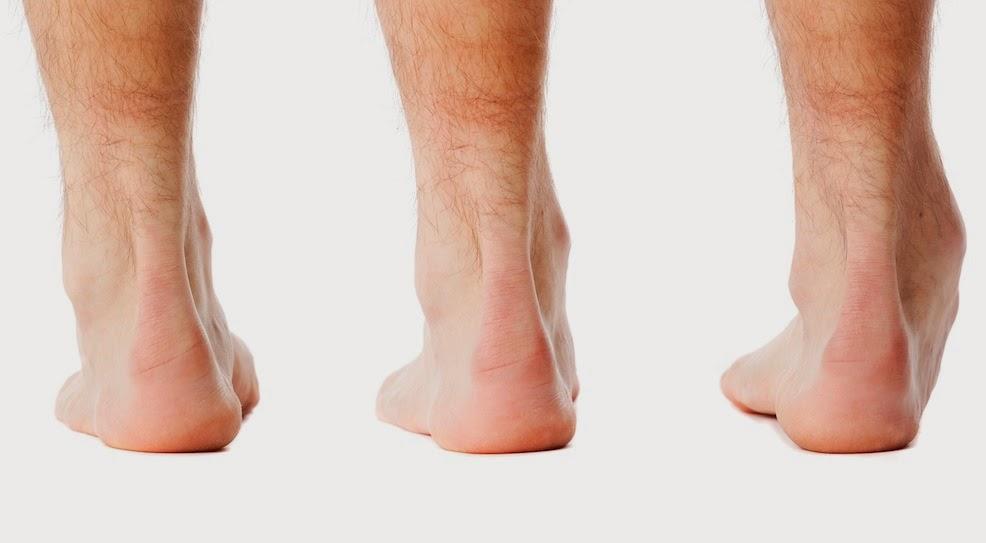 Image result for foot posture index