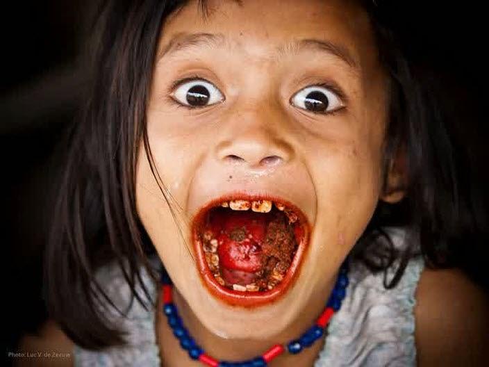 Manfaat Daun Sirih untuk Kesehatan Gigi & Mulut obat sakit gigi berlubang