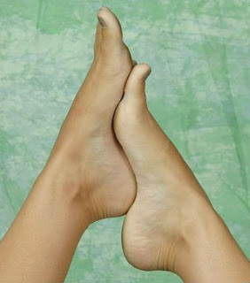 feetcare,skin care , crack heel