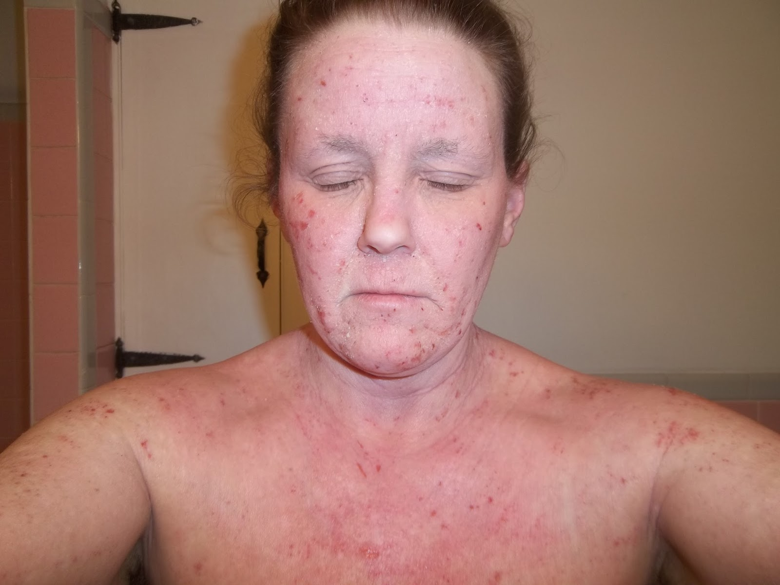 topical steroids for dermatitis