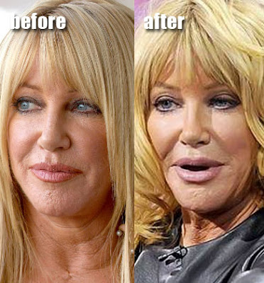 Suzanne Somers before and after? (image hosted by fun.feedfury.com)