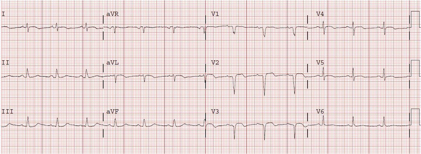 Myocardial Infarction Ecg. Myocardial+infarction+ecg+